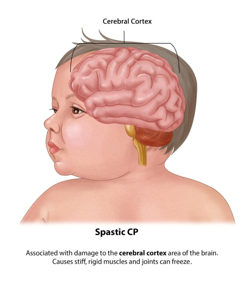 رشد گفتار در کودکان با انواع فلج مغزی
